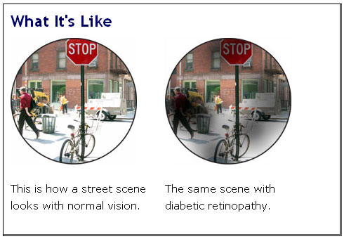 Comparing how a person with normal vision views a scene versus a person with diabetic retinopathy.