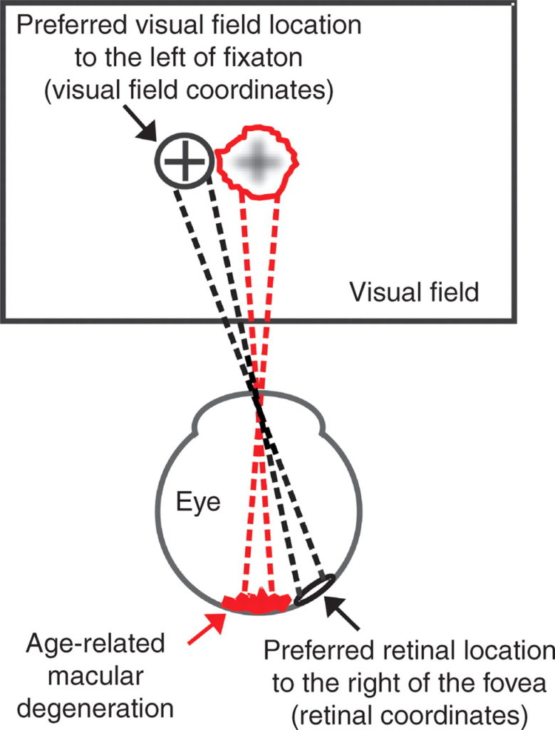 Eccentric viewing techniques to help restore some vision.