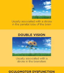 Examples of what stroke survivors will experience regarding vision loss.
